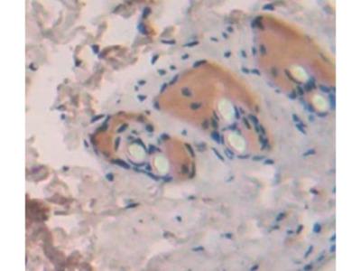 Interleukin 1 Theta (IL1q) Antibody