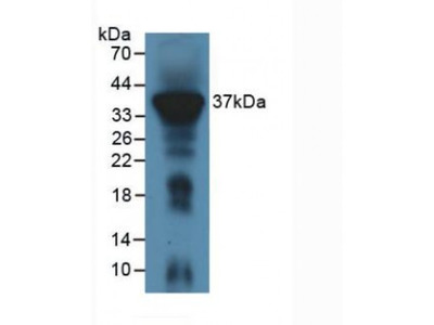 Immune Receptor Expressed On Myeloid Cells 1 (IREM1) Antibody