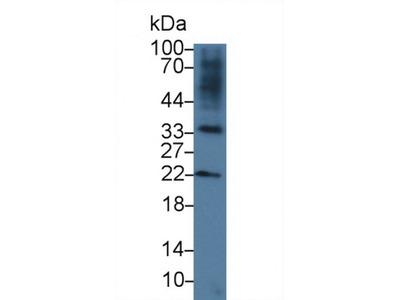 R-Spondin 3 (RSPO3) Antibody