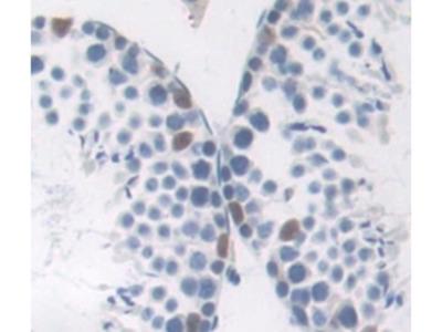 Tumor Protein P53 Binding Protein 1 (TP53BP1) Antibody