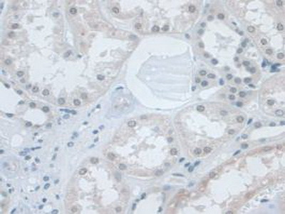 Small Nuclear Ribonucleoprotein Polypeptide D1 (SNRPD1) Antibody