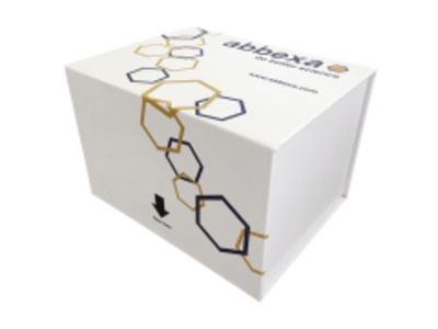 Human Chemokine C-X3-C-Motif Receptor 1 (CX3CR1) ELISA Kit