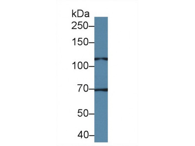 Transient Receptor Potential Cation Channel Subfamily C, Member 6 (TRPC6) Antibody