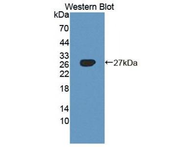 AXL Receptor Tyrosine Kinase (AXL) Antibody