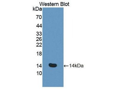 S100 Calcium Binding Protein A8/Calgranulin A (S100A8) Antibody