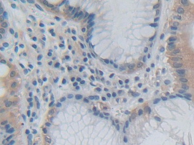 Growth Hormone 2 (GH2) Antibody