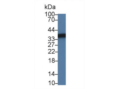Sorbitol Dehydrogenase (SDH) Antibody