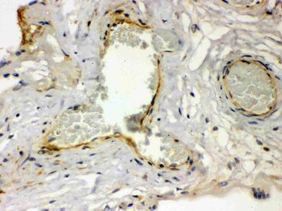 Anti-Thrombin Receptor/F2R Antibody