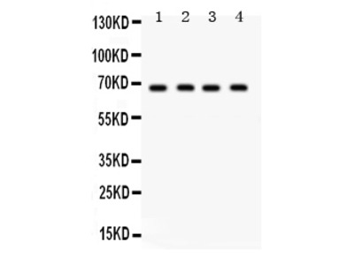Review of the Anti-GRK5 Antibody (cat#PB9708)