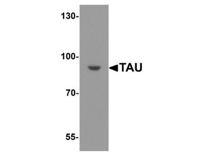 TAU Antibody