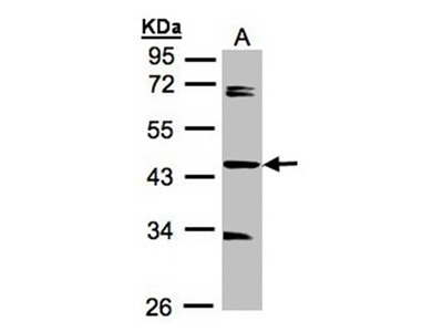 SDCCAG3 antibody
