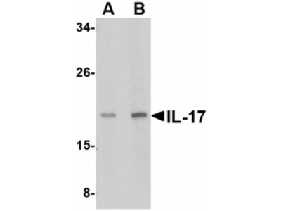 IL-17 Antibody