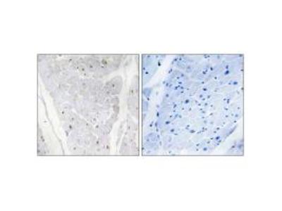 ALPK2 Antibody