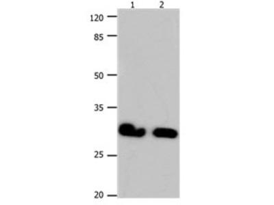 GJB6 Antibody