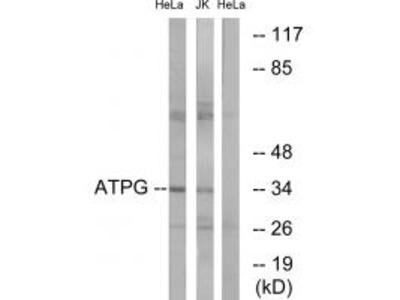 ATPG Antibody