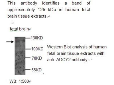 ADCY2 Antibody