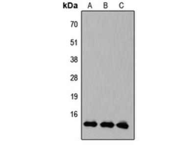 Anti-KLF10/11 Antibody