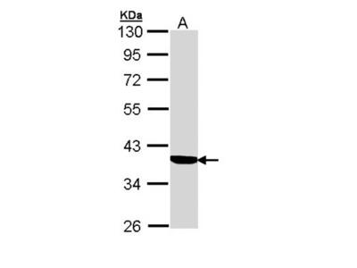 Cortisol Binding Globulin antibody