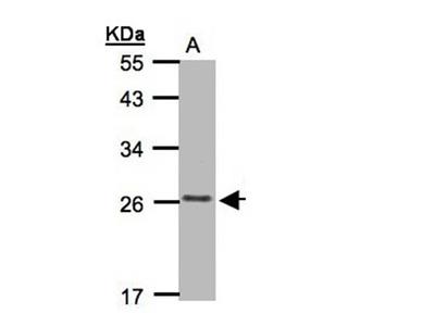 CKLFSF5 antibody
