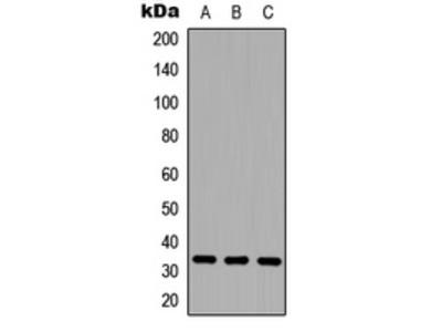 Anti-CD20 Antibody