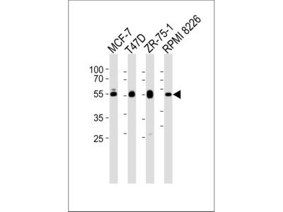 ZDHHC11 Antibody (C-term)