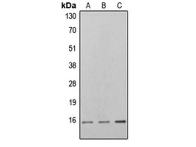 Anti-4EBP1 (pT46) Antibody