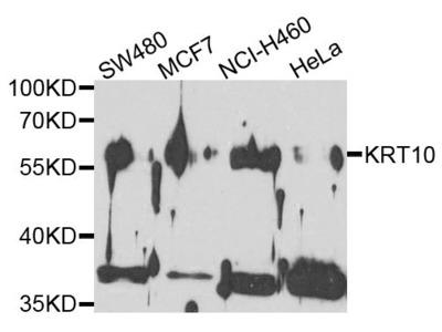 KRT10 Polyclonal Antibody