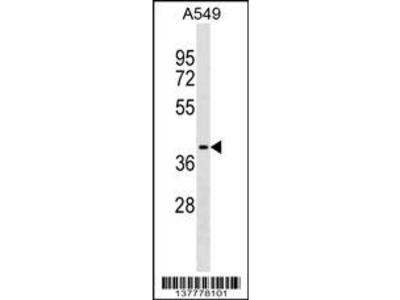 ZCCHC12 Antibody (C-term)