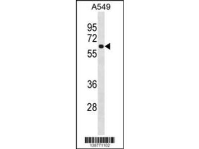 FCRL1 Antibody (C-term)