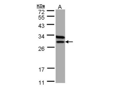 Beta-ETF antibody
