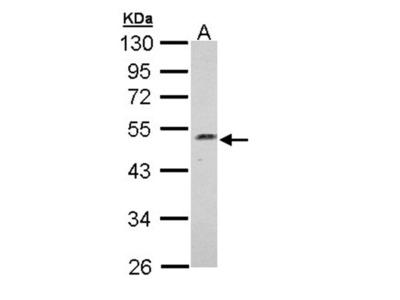 Njmu-R1 antibody