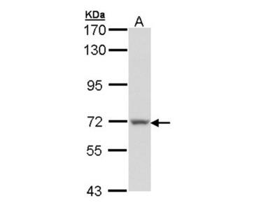 Protein S antibody