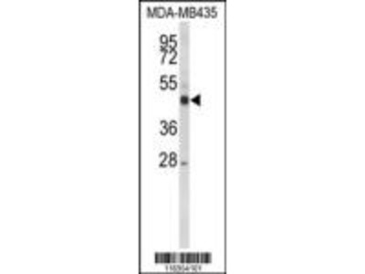 CYP21A2 Antibody (Center)