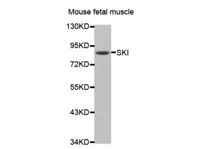 SKI antibody