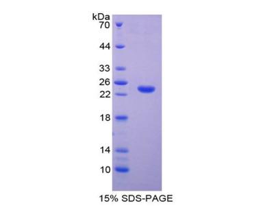 Recombinant Tissue Inhibitors Of Metalloproteinase 4 (TIMP4)