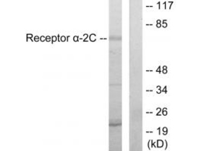 Adrenergic Receptor alpha-2C Antibody