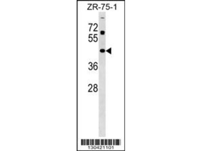 ZNF323 Antibody (Center)