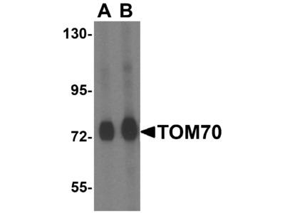 TOM70 Antibody