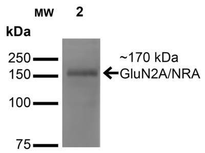 GluN2A/NR2A Antibody: APC