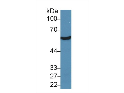 Polyclonal Antibody to Aldehyde Dehydrogenase 7 Family, Member A1 (ALDH7A1)
