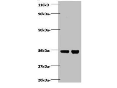 Rabbit anti-human Zinc finger BED domain-containing protein 1 protein polyclonal Antibody
