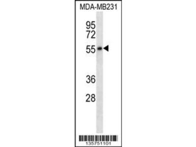 HTR7 Antibody (C-term)