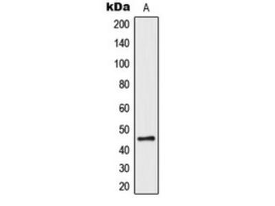 Anti-PAR1 Antibody