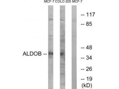 ALDOB Antibody