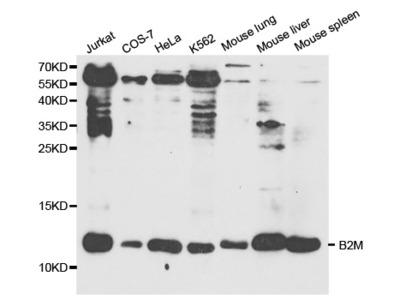 B2M Antibody