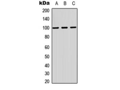 Anti-MAG Antibody