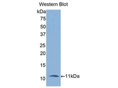 Polyclonal Antibody to Interleukin 6 Receptor (IL6R)