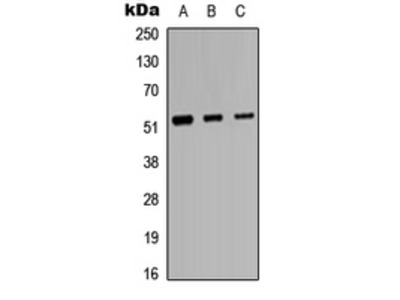Anti-Protein C Antibody