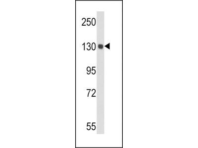 CP Antibody (Center)