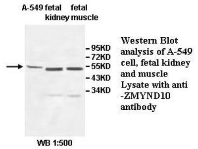 Anti-ZMYND10 Antibody